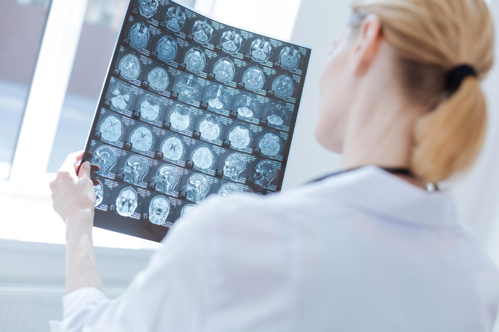 Sanecum policum neurogolie 2